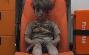 Little boy in Aleppo a vivid reminder of war`s horror