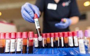 Найдено средство против бессмертных раковых клеток
